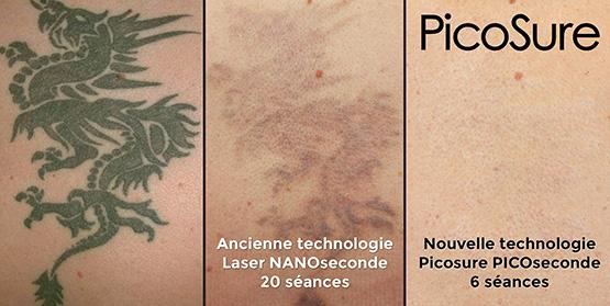 le prix pour enlever un tatouage tatouage. Black Bedroom Furniture Sets. Home Design Ideas